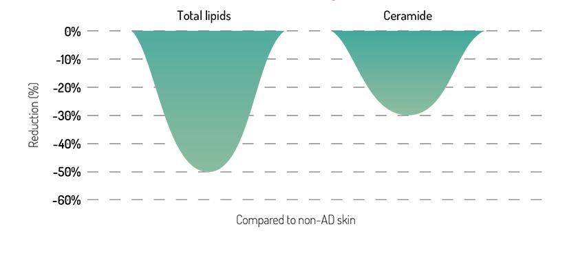 ceramide-deficiency-ad-skin